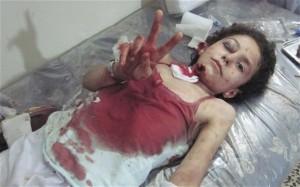 children-syria-war